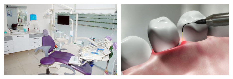 Dental Lazer ile ilgili merak ettikleriniz...